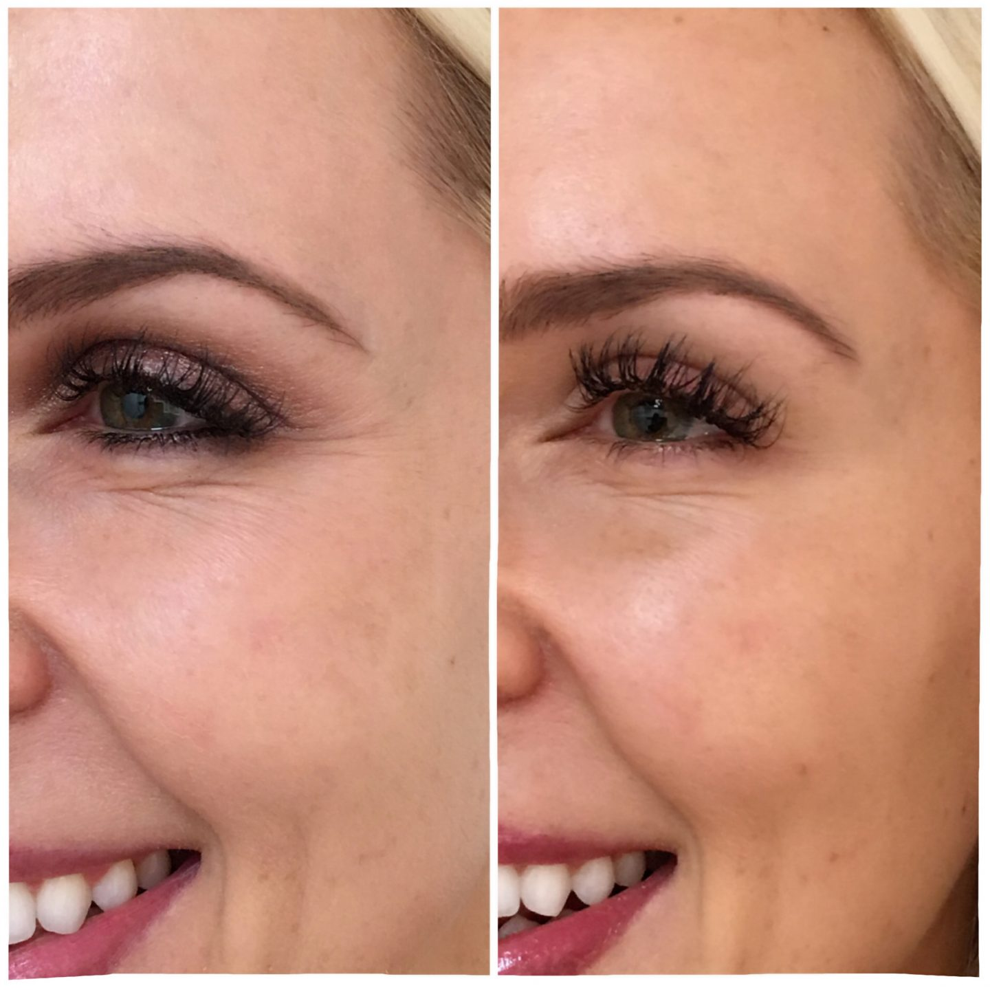 Botox and fillers before and after pictures featured by top US beauty blog Lombard and Fifth
