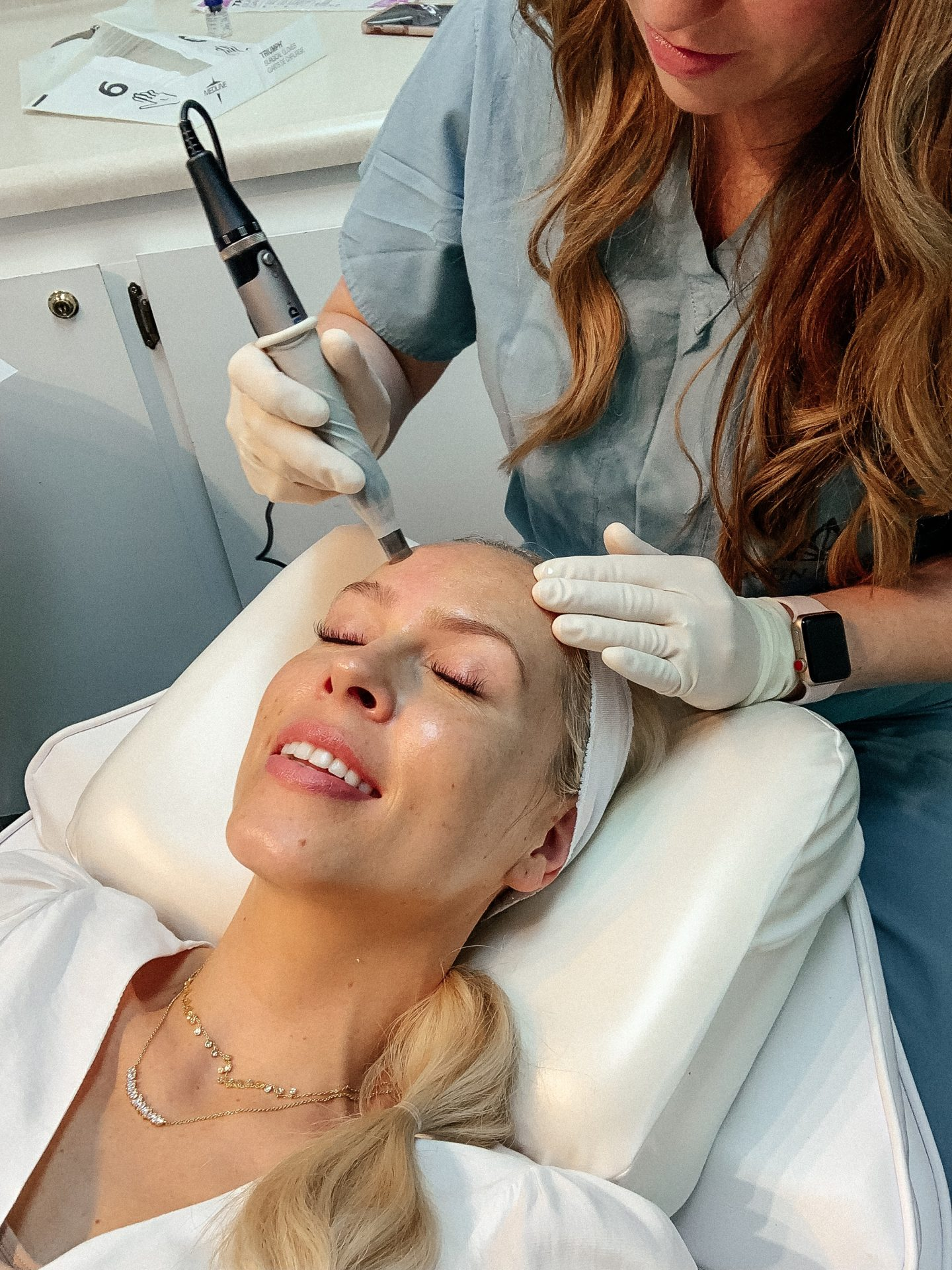Microneedling with Botox featured by top San Francisco fashion blogger Lombard and Fifth.